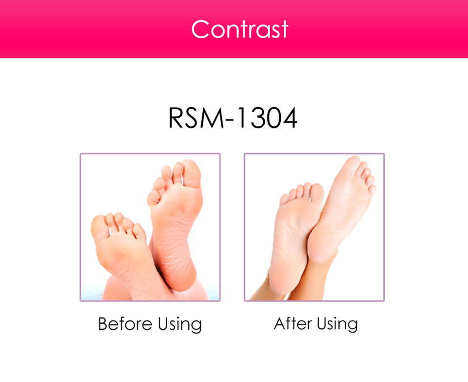 Electric Callus Remover and Foot Scrubber, Professional Micro Pedicure Exfoliating File Tool, Repair & Smooth Cracked, Dead Skin, Dry, Rough Feet, Pumice Roller- Pink