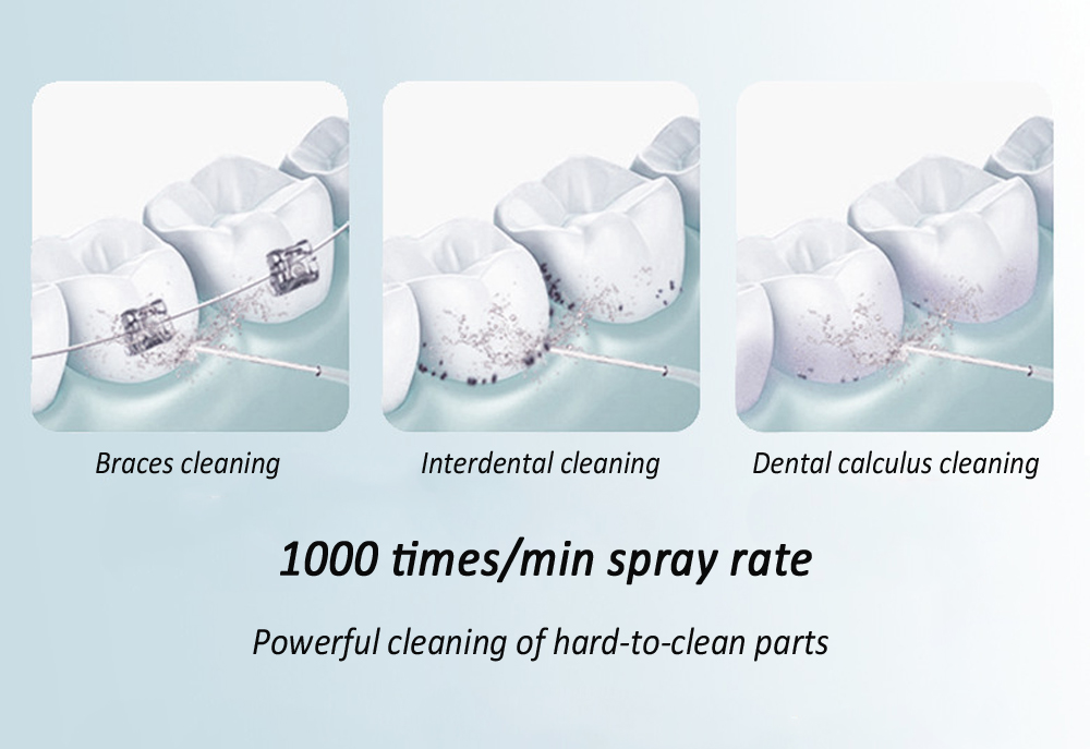 L-10 Electric Teeth Washer Household Teeth Flushing Device Oral Cleaning Smart Water Dental Floss Portable Dental Scaler Beautiful Dental Instrument - White