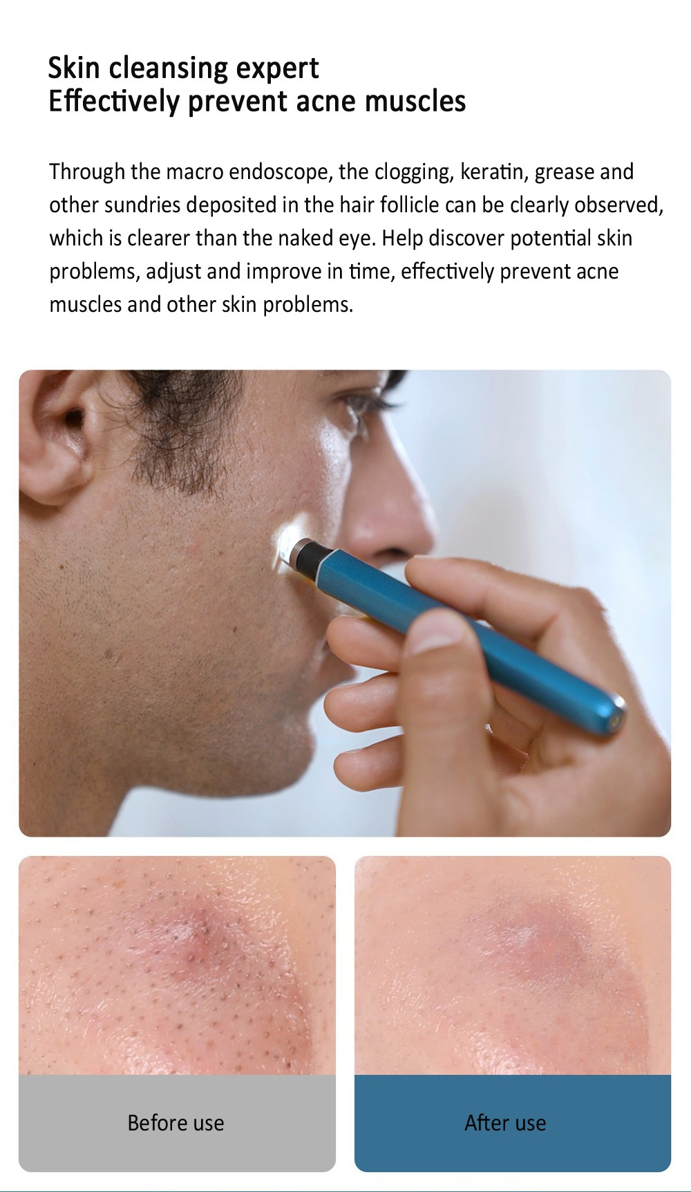Wisdom Smart Visual Pore Cleaner from Youpin - Silk Blue
